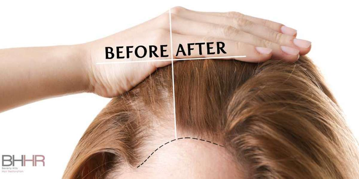 How Much Do Hair Grafts Cost